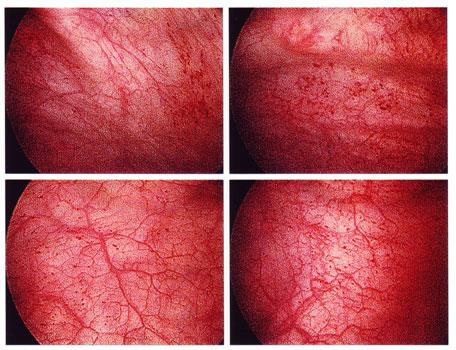 Как правило, развитие воспаления уретры в таком случае бывает связано с.