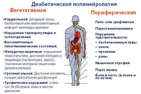 Патогенез диабетической нейропатии. удлинение прелюдии полового акта.