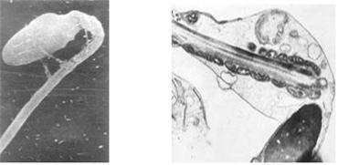 agregatsiya-spermatozoidov-diagnoz