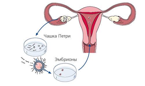Иисм искусственная инсеминация спермой мужа сто к одному