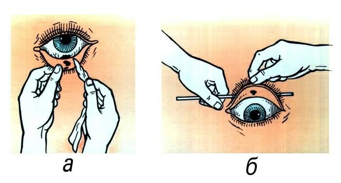 Как промыть глаз ребенку в домашних условиях от соринки