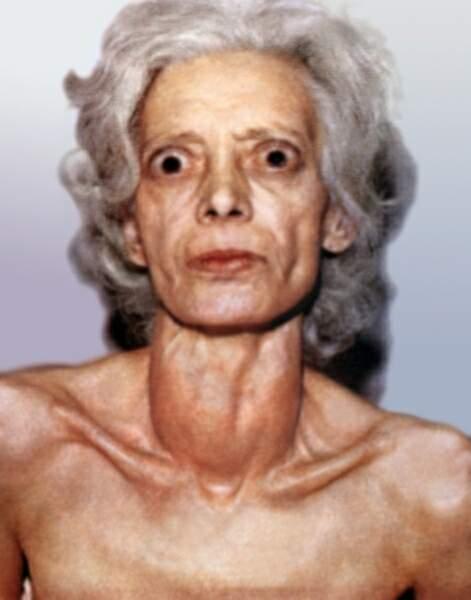 термобелье Nord ботокс при эндокринной офтальмопатии шерстяное термобелье лучше