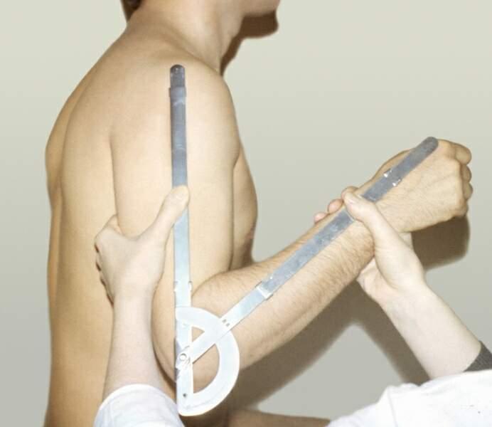 Что такое подвижный сустав на месте перелома