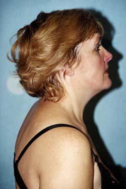 Отрастить волосы средство от облысения