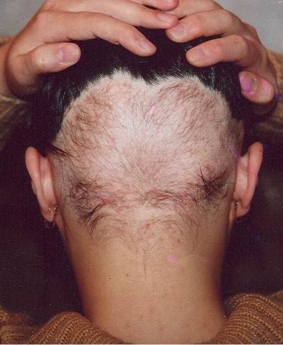 Как можно сделать прическу если выпадают волосы и как сделать прическу каскад