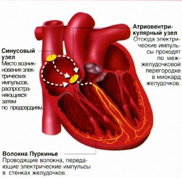 такое синусовая и мерцательная аритмия сердца?