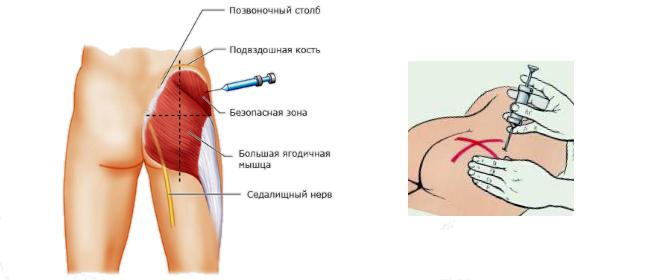 Как сделать самому себе внутримышечную инъекцию