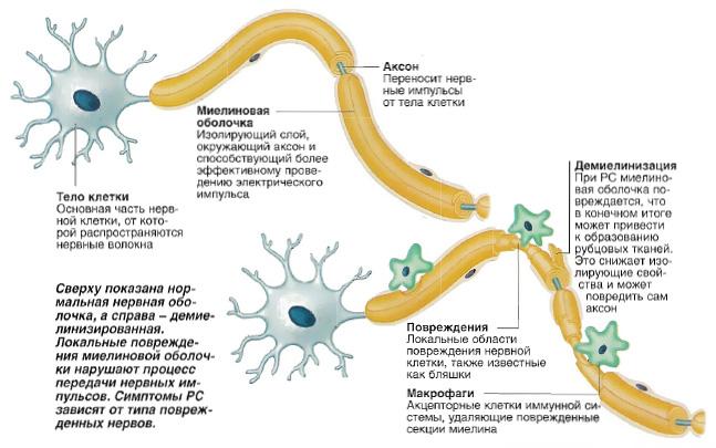 Рассеянный склероз - причины и