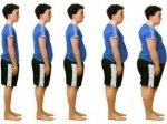 Выявлена генетическая причина ожирения у детей
