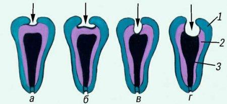 Поражения зубов при различных формах кариеса (схема)