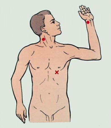 Реанимация. Точки определения пульса на артериях и место выслушивания тонов сердца