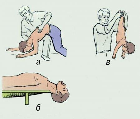 Удаление инородного тела из дыхательных путей