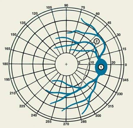Изображение физиологических скотом при исследовании поля зрения правого глаза