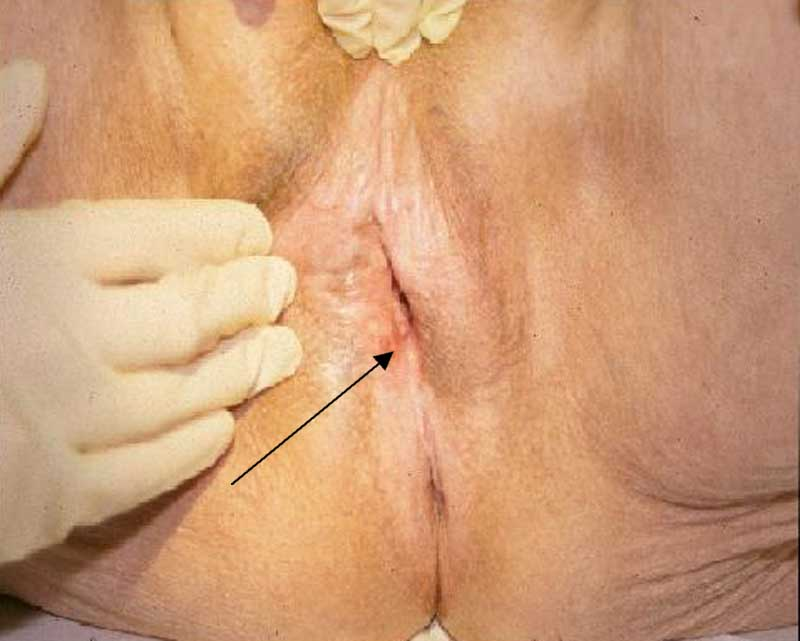 Management of vulvar carcinoma