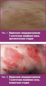 Первичная эпидермотропная Т-клеточная лимфома кожи