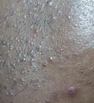 Акне (угри) - причины, диагностика и лечение