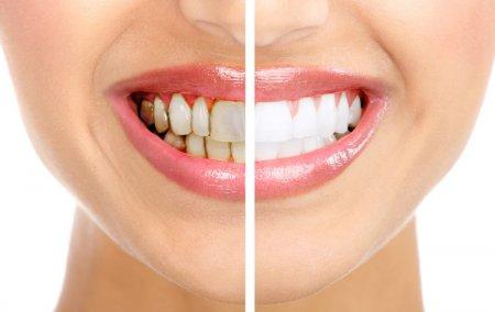 Как удалить зубной камень или профессиональная чистка зубов