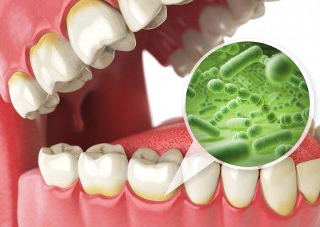 лечение десен — stomatologiya-konova.com